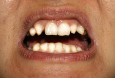 Crooked teeth. Orthodontics. Underdevelopment and defects of teeth. Stock Photos