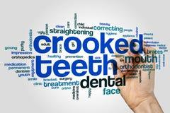Crooked teeth word cloud Stock Photo