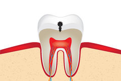 Crop of tooth. With caries. EPS 10 vector illustration stock illustration