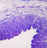 cross średniej mocy sekcji żołądek. Zdjęcia Stock