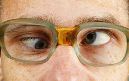 Cross-eyed person in old-fashioned spectacles. The cross-eyed person in old-fashioned spectacles close up Royalty Free Stock Photography