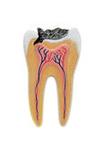 Cross section of a anatomical tooth model Stock Images