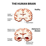 Cross-section of the human brain with Alzheimer`s disease. The human brain. Cross section. Healthy and brain with Alzheimer`s disease dementia, senility royalty free illustration