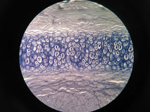 Cross section human cartilage bone. Under microscope view Stock Photo