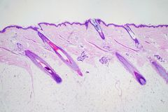 Cross section human skin head under microscope view for education histology. royalty free stock images