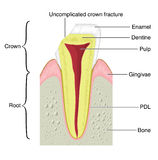 Cross section of a tooth with a crown frac. Drawing to show the main anatomical structures of a typical incisor tooth, including the bone of the jaw and gum Royalty Free Stock Photography
