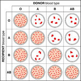 Crossmatch. Blood typing by crossmatch showing reactions between different blood groups Royalty Free Stock Image