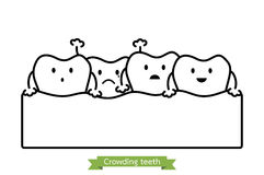 Crowding teeth  malocclusion  - cartoon vector outline style Stock Photography