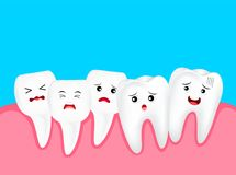 Crowding tooth, cute cartoon character. Dental problem concept, illustration. Isolated on blue background Royalty Free Stock Photography
