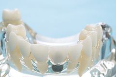 Prosthodontic Model. Royalty Free Stock Photos