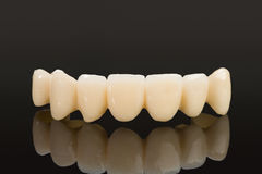 Crown seven elements on zirconium oxide. Detail of the layering ceramic dental implant royalty free stock image