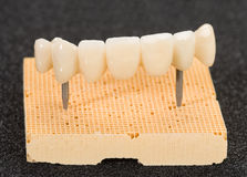 Crown seven elements on zirconium oxide. Detail of the layering ceramic dental implant royalty free stock photos