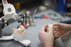 Crowns using plaster casts Stock Photos