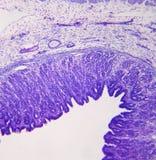 Cruz del estómago - sección - potencia media Fotos de archivo