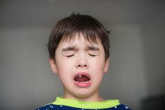 Crying child as he just lost his babytooth Stock Images