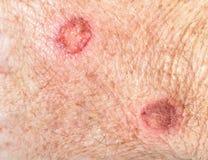 cryotherapy的皮肤 免版税库存图片