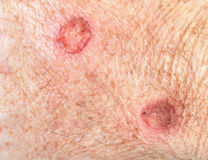 Cryotherapy huid Royalty-vrije Stock Afbeeldingen