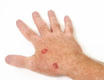 Cryotherapy treatment. To remove precancerous cells from a hand Royalty Free Stock Images