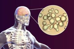 Cryptococcal meningitis, medical concept. Cryptococcal meningitis, 3d illustration. Pathogenic yeast fungus Cryptococcus neoformans causes meningoencephalitis in Royalty Free Stock Photography