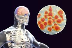 Cryptococcal meningitis, medical concept. Cryptococcal meningitis, 3d illustration. Pathogenic yeast fungus Cryptococcus neoformans causes meningoencephalitis in Royalty Free Stock Photo