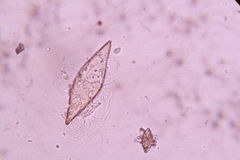 Crystals in urine. Sediment under microscopic Stock Photography
