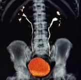 Ct扫描3d ct泌尿系摄影术五颜六色肾脏的膀胱 免版税库存图片