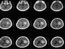 CT脑子 图库摄影