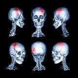 CT顶头和子宫颈脊椎的扫描和3D图象 为冲程,头骨破裂,神经学情况使用这个图象 库存照片