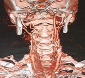 CT αγγειογραφίας στοκ εικόνα