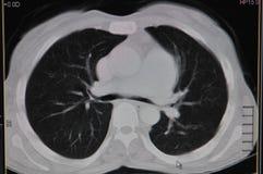 CT πνευμόνων στοκ φωτογραφία με δικαίωμα ελεύθερης χρήσης
