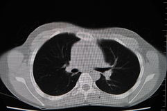 CT πνευμόνων στοκ εικόνα με δικαίωμα ελεύθερης χρήσης