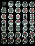CT του εγκεφάλου με το hemorrhagic κτύπημα στοκ εικόνες