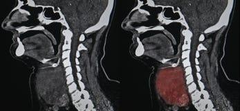 甲状腺肿瘤, CT 免版税图库摄影
