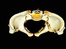 CT-aftasten 3D Bekken Stock Fotografie