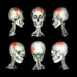 CT aftasten en 3D beeld van hoofd en cervicale stekel Gebruik dit beeld voor slag, schedelbreuk, neurologische voorwaarde Stock Fotografie
