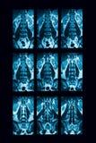 CT-aftasten van lumbale stekel, geval van lumbale spondylosis stock foto's
