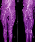 CT Angiography of pelvic and leg arteries Stock Photography