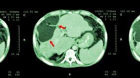 Ct-bildläsning av övremagen: visa onormal mass på lever (levercancer) royaltyfri foto