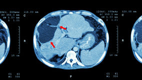 Ct-bildläsning av övremagen: visa onormal mass på lever (levercancer) royaltyfri fotografi