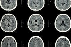 Ct-bildläsning av bildläsningen för CT för hjärna för hjärnshow den normala (Neurological bakgrund) av den normala hjärnan för hj Arkivfoton