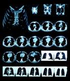 Ct-bildläsning av bröstkorgen med rekonstruktion 3D. Arkivfoto