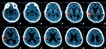 Ct-bildläsning av brainn Arkivfoto