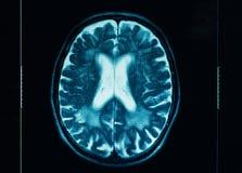 Ct-bildläsning av den mänskliga hjärnan Royaltyfri Foto