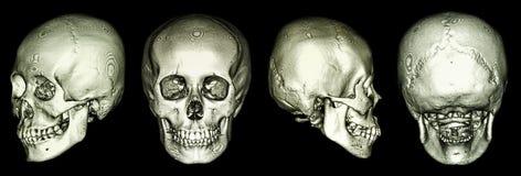 Ct-bildläsning av den mänskliga skallen och 3D Arkivfoto