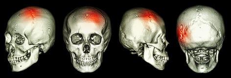 Ct-bildläsning av den mänskliga skallen och 3D med slaglängden Arkivbilder