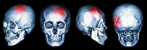 Ct-bildläsning av den mänskliga skallen och 3D med slaglängden (den cerebrovascular olyckan) arkivbild