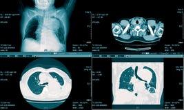 Ct-bildläsning av den medicinska bakgrunden för bröstkorg Arkivfoton
