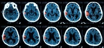 Ct-bildläsning av hjärnan fotografering för bildbyråer
