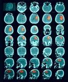 Ct-bildläsning av hjärnan. Hemorrhagic slaglängd. Arkivbild