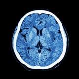 Ct-bildläsning av hjärnan: visa normala människans hjärna (KATTbildläsningen) Royaltyfria Bilder